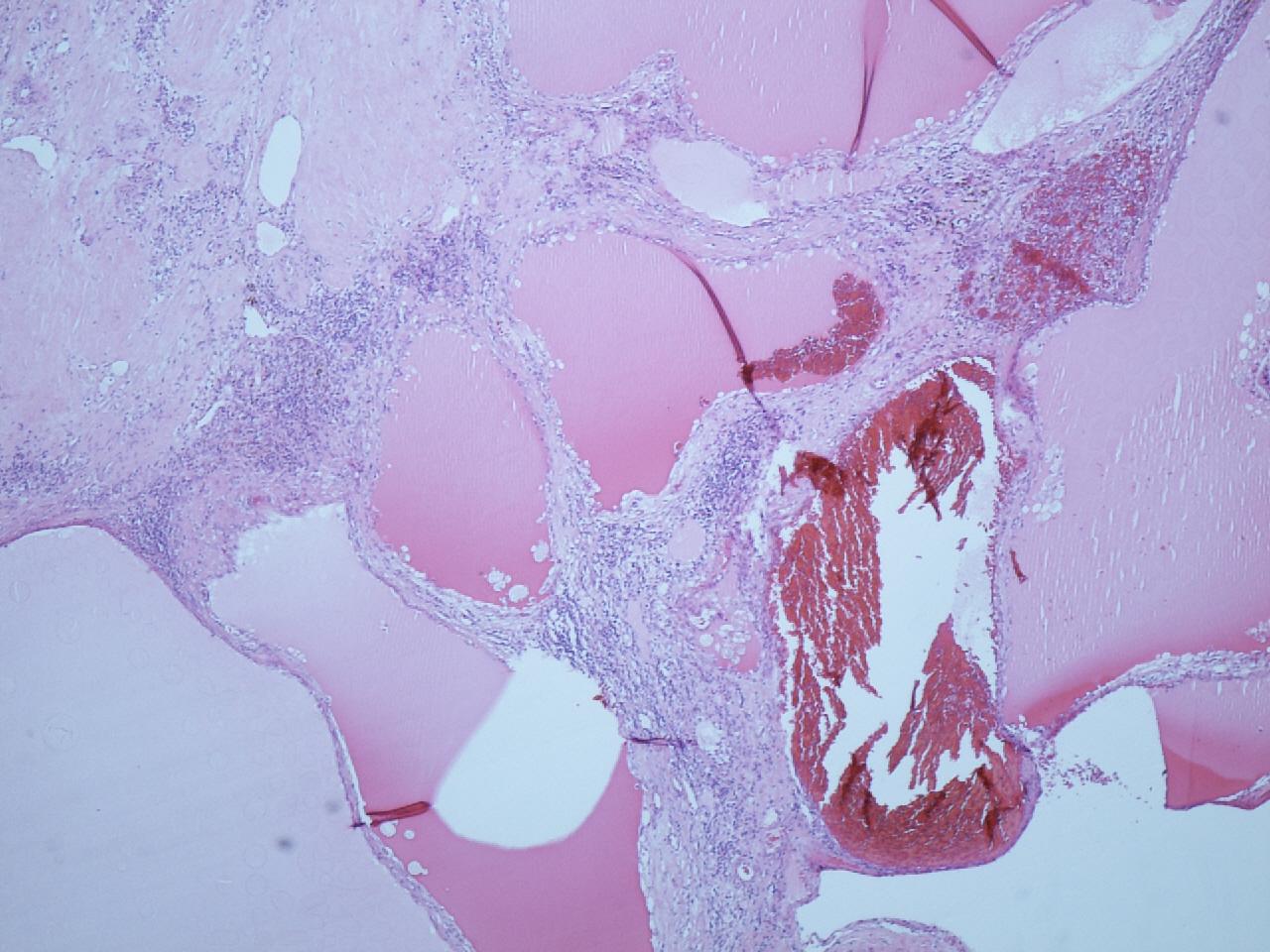 Begrenzter, grau weißer und teils zystischer Tumor, Nephrektomiepräparat