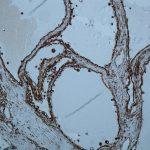 Immunhistochemischer Befund für Vimentin